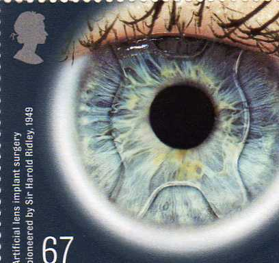 UK stamp – artificial lens implant surgery