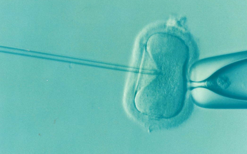 1990 The Human Fertilisation and Embryology Act 1990.